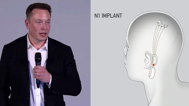 Elon Musk Announces Plan to 'Merge' Human Brains With AI