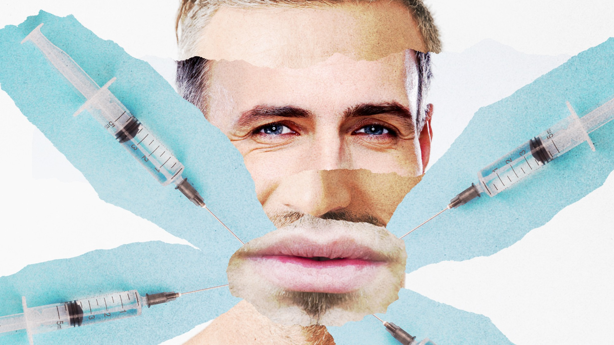 Men Are Going Wild for 'Masculinisation' Fillers - VICE
