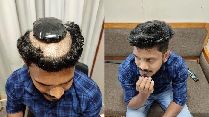 Kerala Man Shaves Head to Smuggle Gold Under His Wig
