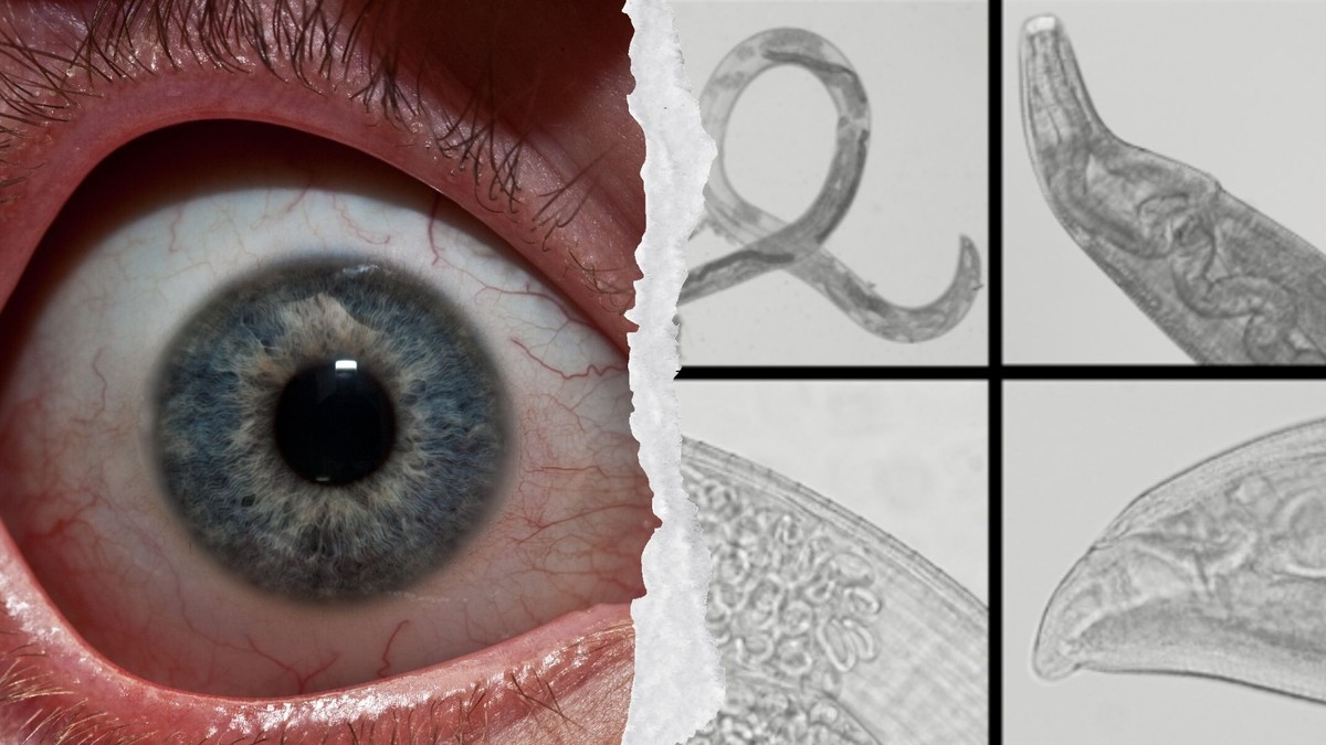 Itchy? These Worms Are Suddenly Breeding in People's Eyes ...