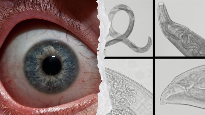 Itchy? These Worms Are Suddenly Breeding in People's Eyes and Scientists Are Baffled