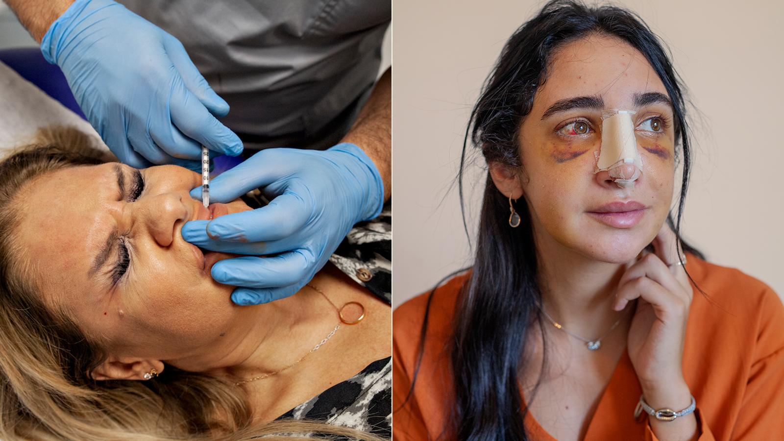 Mutilarea genitală la femei - Wikipedia