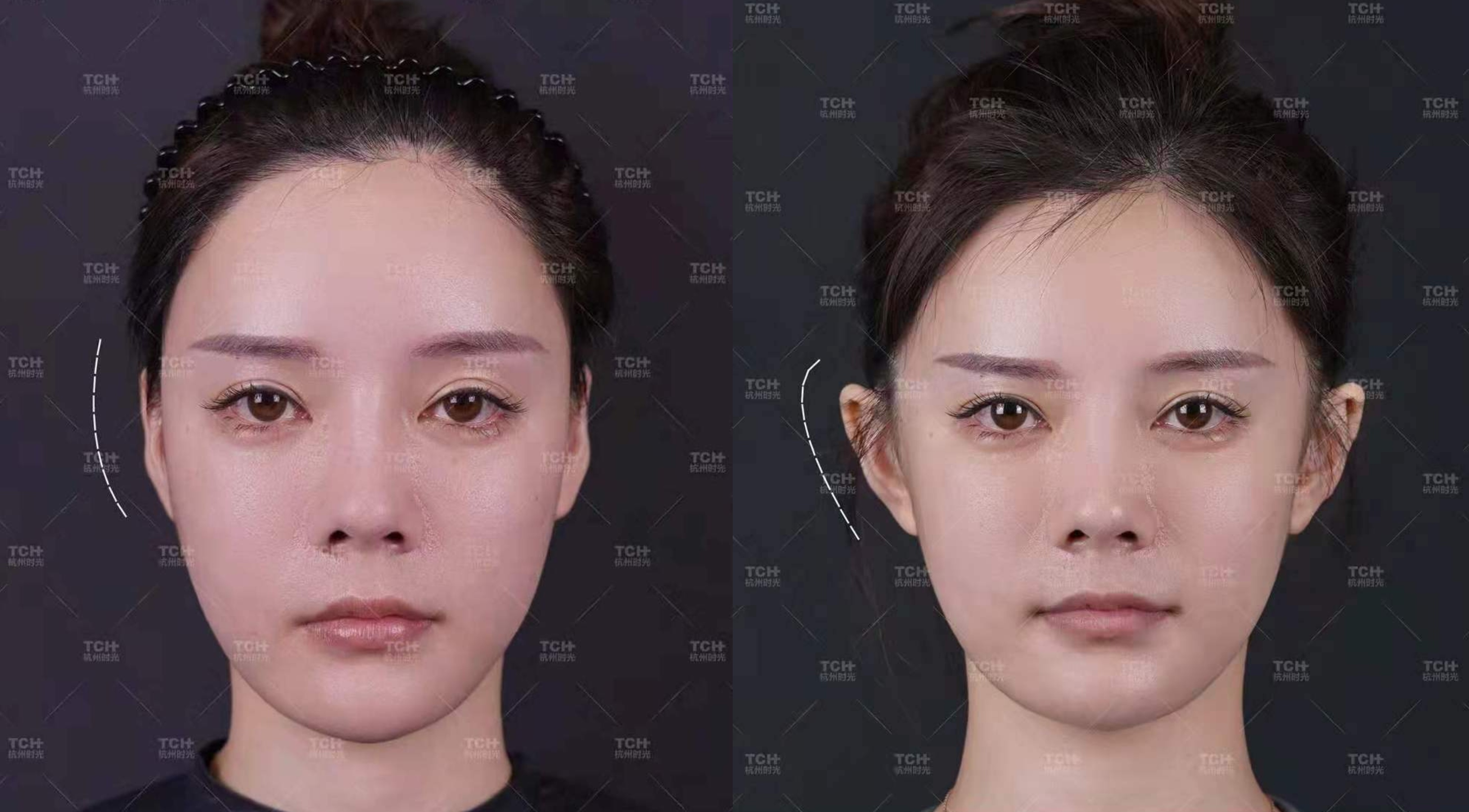 Elf Ears' Are Trending in China. People Are Undergoing Surgery To Get Them.