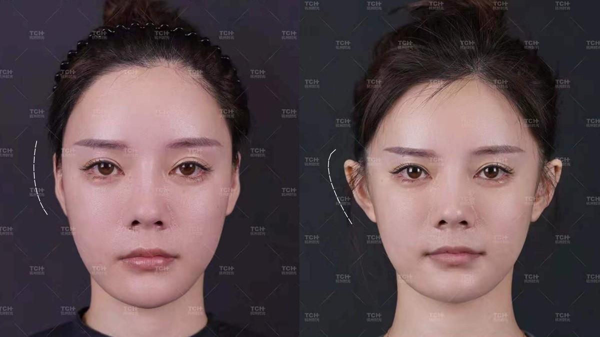 Termakan Tren, Banyak Warga Tiongkok Operasi Telinga Biar Mirip Peri