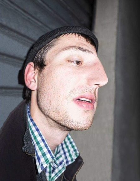 man with large nose