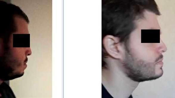Ein User des Incelforums zeigt ein Vorher-Nachher-Bild, er hat sich mehreren mehrfachen Kieferoperationen und einer Barttransplantation unterzogen, um das sogenannte Anteface zu bekommen