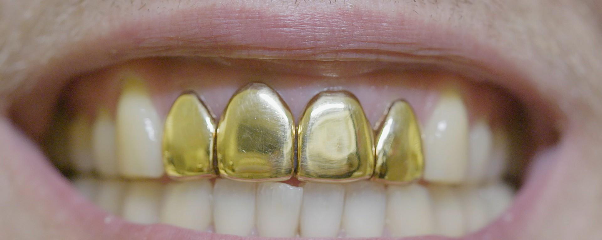 Zähne schlechte Sind schlechte